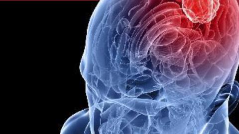 Día Mundial del Accidente Cerebrovascular -ACV-