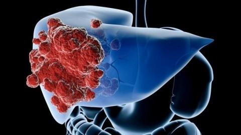 En 2030, el hígado graso causará más cáncer de hígado que la hepatitis